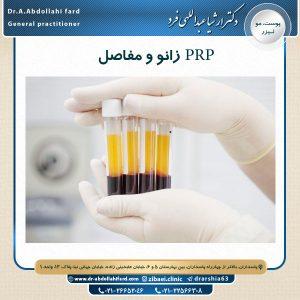 PRP زانو و مفاصل
