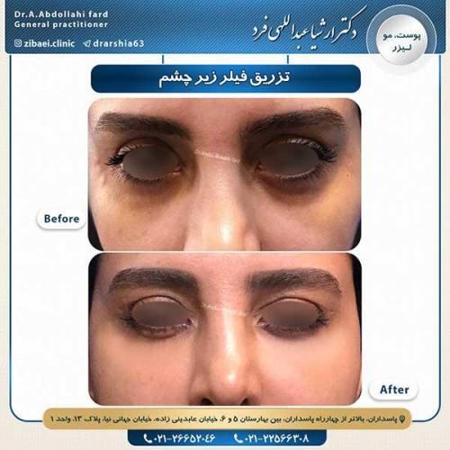 تزریق-فیلر-زیر-چشم-2