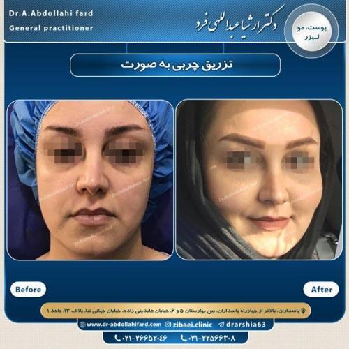 تزریق چربی در تهران 31