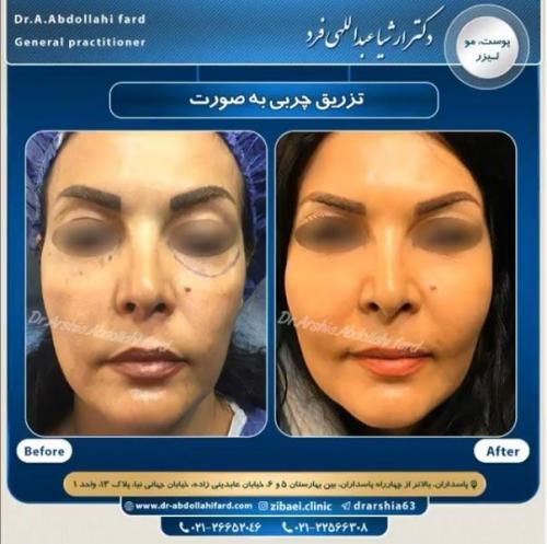 تزریق چربی در تهران 32