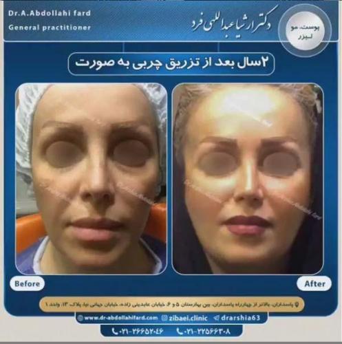 تزریق چربی در تهران 34