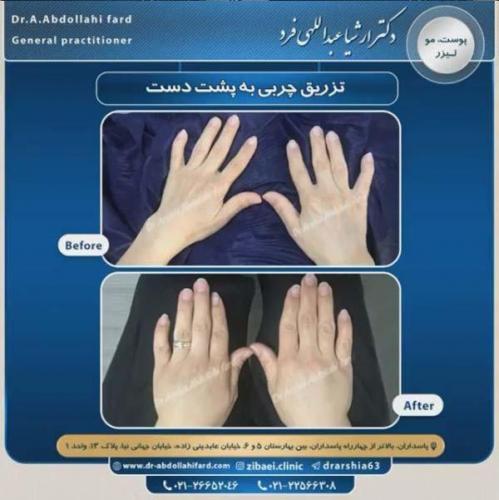 تزریق چربی در تهران 35