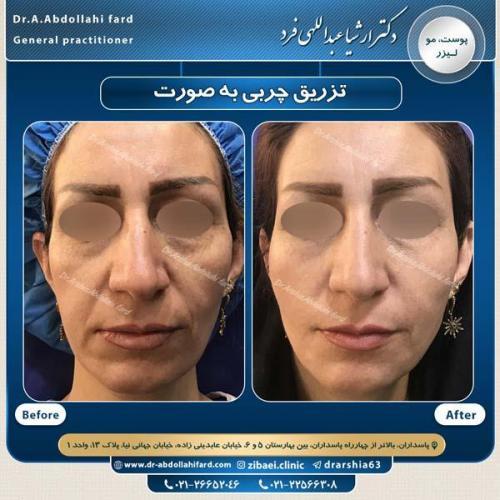 تزریق چربی در تهران 36
