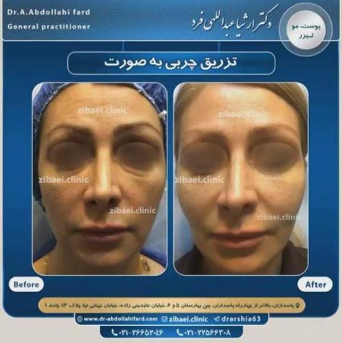 تزریق چربی در تهران 37