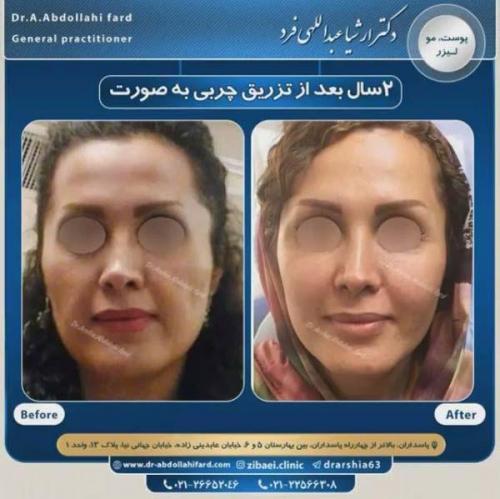 تزریق چربی در تهران 39