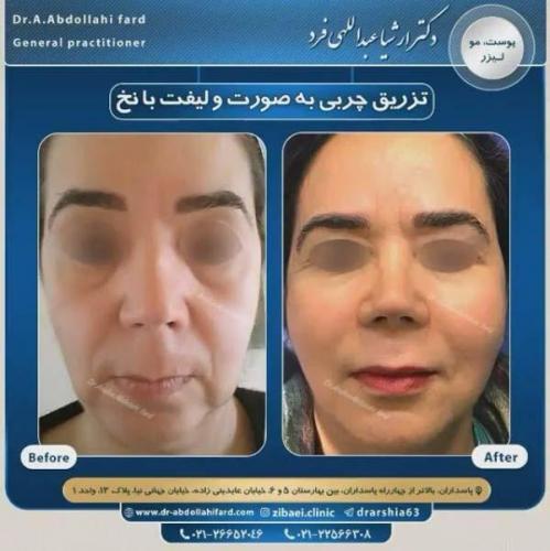 تزریق چربی در تهران 41