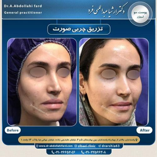 تزریق چربی در تهران 47