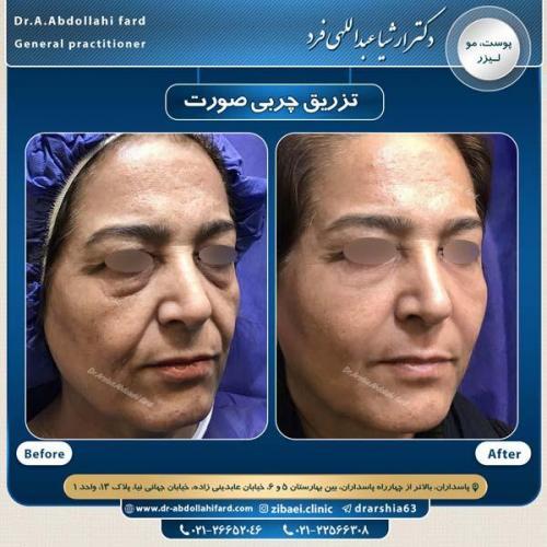 تزریق چربی در تهران 48