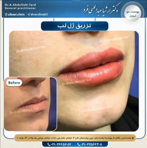 تزریق ژل در تهران 35