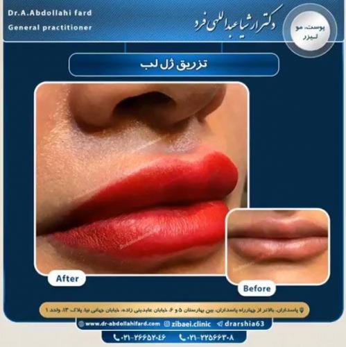 تزریق ژل در تهران 36