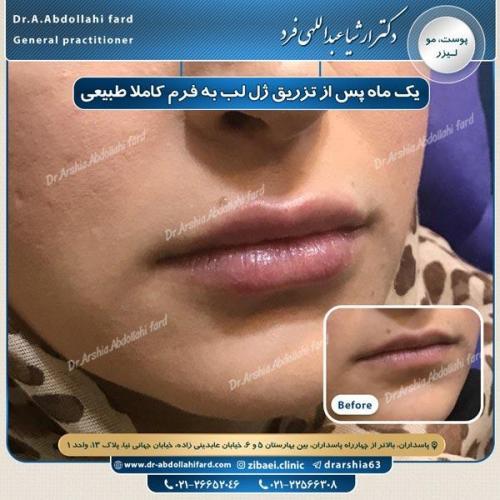 تزریق ژل در تهران 38