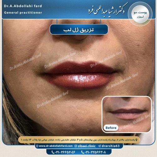 تزریق ژل در تهران 42