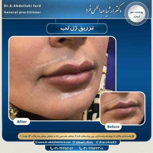 تزریق ژل در تهران 57